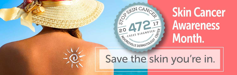 mooresville-derm-skin-cancer-aware